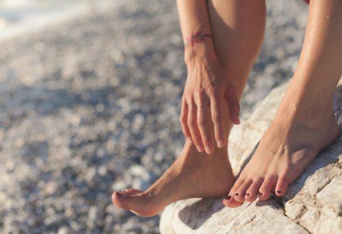 Leti je ovaj problem najčešći: Efikasno sprečite OJED i trenje kože tokom vrućina